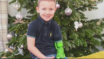 Boy born with one arm gets best Christmas present: A second arm