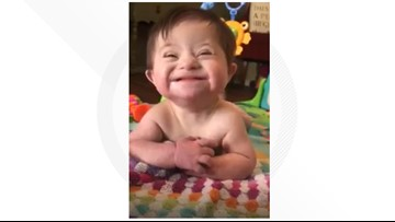 Watch this recently adopted baby with Down syndrome who can't stop smiling