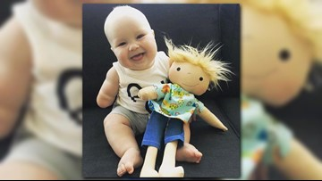 Dolls with scars, missing limbs bring joy to kids with medical conditions