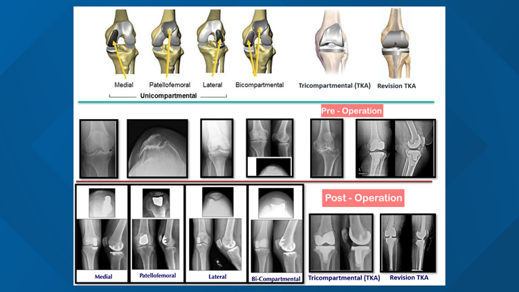EvergreenHealth Pre and Post Knee Replacement Surgery
