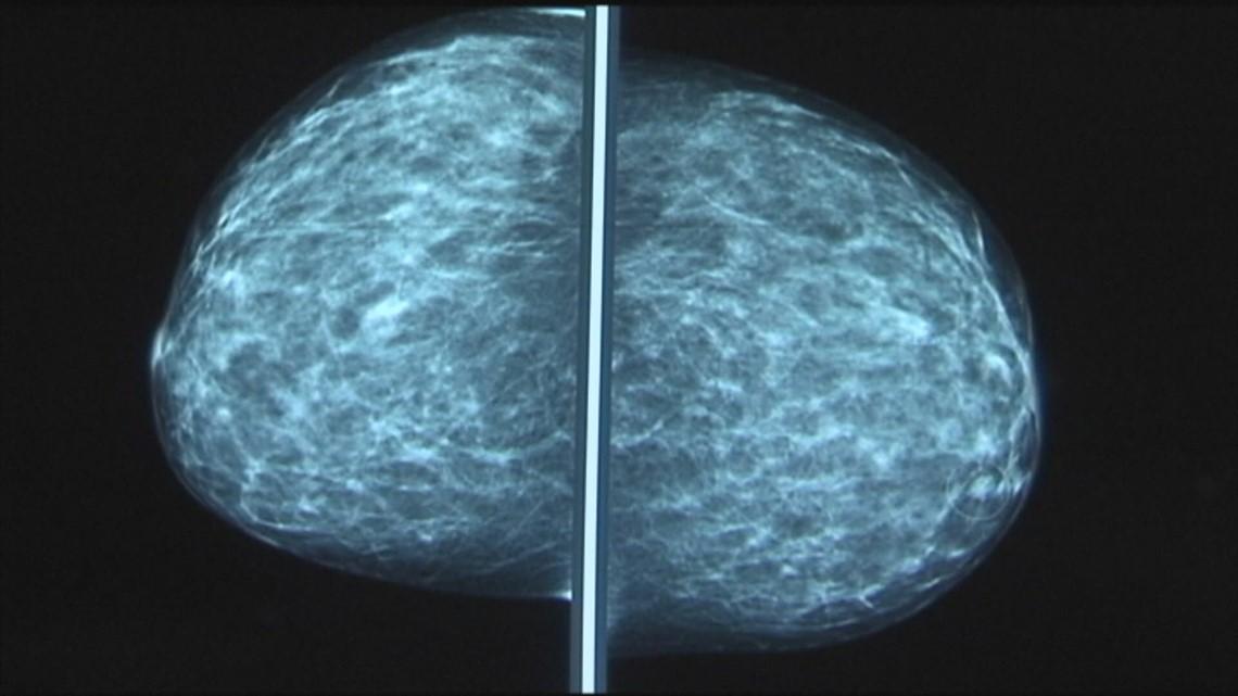 Breast cancer survivor urges women to schedule missed mammograms