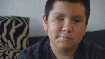 'My eyesight will return': 14-year-old blinded by SR 509 shooting fights to see again