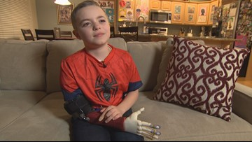 Maple Valley 'bionic kid' created comic book to help others with limb differences - 12 Under 12