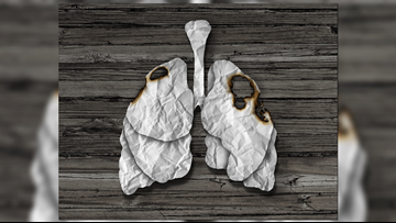 Lung cancer on the rise among non-smoking, younger women
