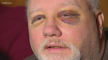 Tacoma store clerk assaulted