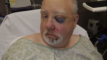 Beaten Tacoma store clerk wants public help to find attackers
