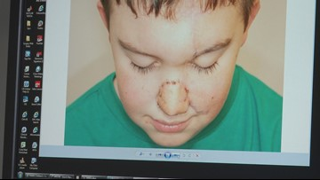 Seattle Children's doctors rebuild boy's nose after dog bite
