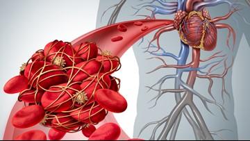 How to avoid Deep Vein Thrombosis