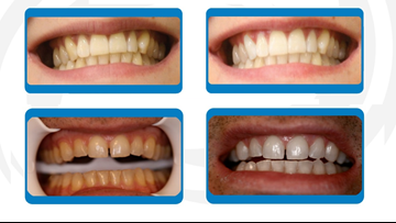 Rejuvenate your smile in days this advanced teeth whitening system