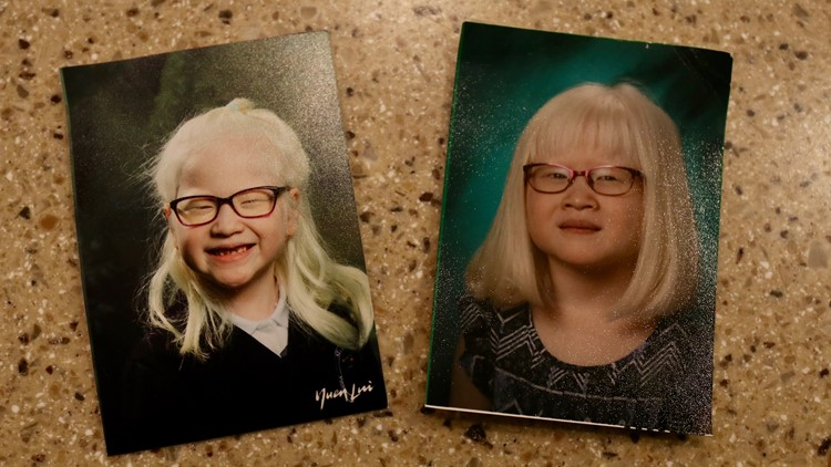 Sarah Carollo's school pictures hang on the fridge at the 6-year-old girl's Sammamish home. (Photo: Taylor Mirfendereski | KING 5)