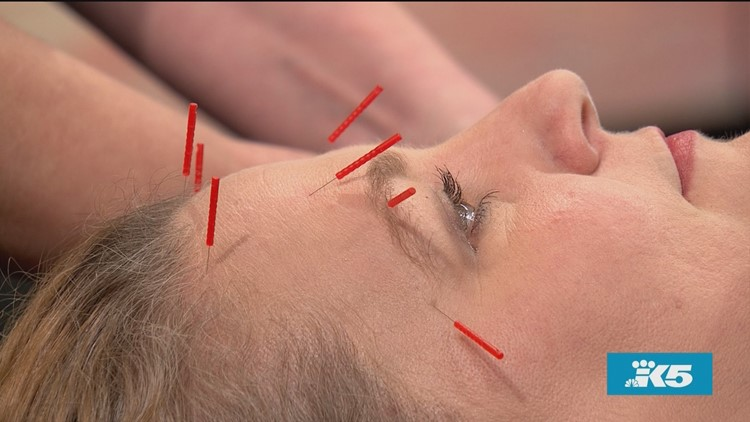 Modern Acupuncture for Beauty