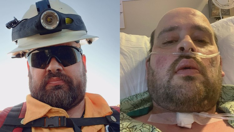 Washington firefighter spends 5 weeks on ventilator after catching COVID-19 fighting Colorado fire
