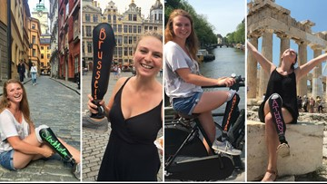 'Blackboard' prosthetic leg becomes star of 23-year-old's European adventure