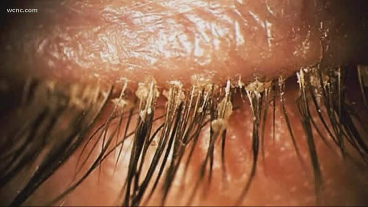 Warning: Eyelash extensions could bring tiny mites